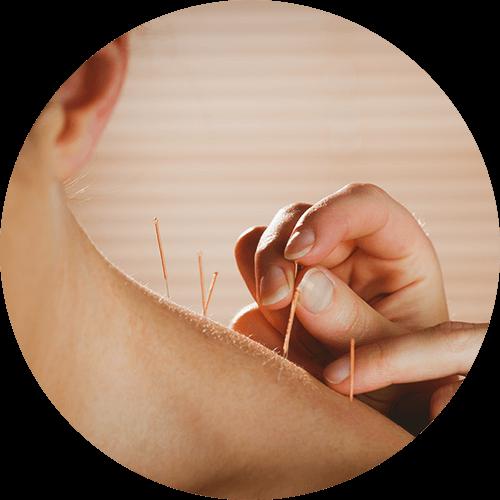 Datos sucios sobre Alivio del dolor natural revelados